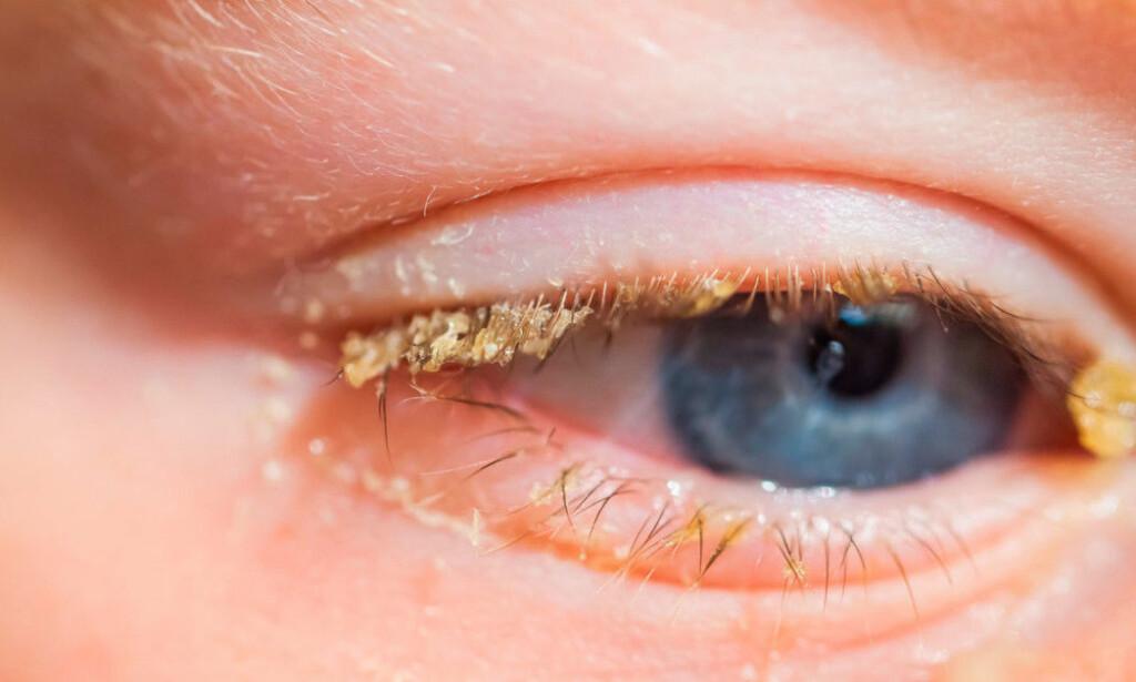 ØYEKATARR: Infeksjonen kan gjøre øyet rødt, og gi gult puss. Foto: NTB Scanpix/Shutterstock
