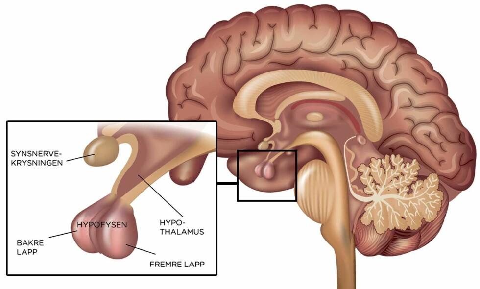 HER ER HYPOFYSEN: Hypofysen sitter i hjernen, i linje bak fra nesen. Den henger sammen med hypofysen. Medisinsk illustrasjon: NTB Scanpix/Shutterstock. Norsk tekst v. Lommelegen.