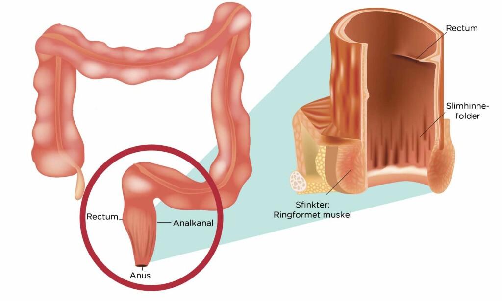 ANALKANALEN: Rectum og anus er nederste delen av tarmsystemet. Ved kreft her er de vanligste symptomene blødning, kløe og smerter. Foto: NTB Scanpix/Shutterstock