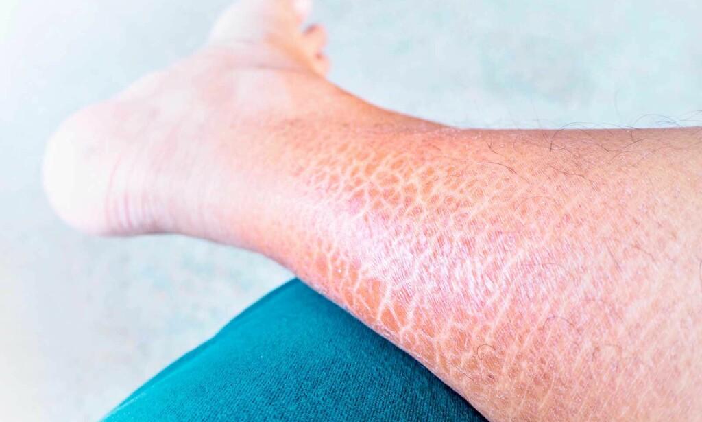 IKTYOSE: På bildet ser du en person som har Iktyose vulgaris, den vanligste og minst alvorlige formen av denne sykdommen. Foto: NTB Scanpix/Shutterstock