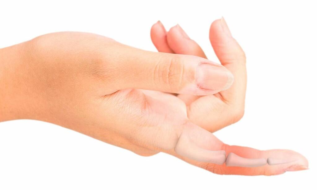 FINGERSENESKADE: Hvis senene i fingrene blir skadet, blir det vankselig å bevege fingrene normalt. Droppfinger kan bli resultatet. Foto: NTB Scanpix/Shutterstock