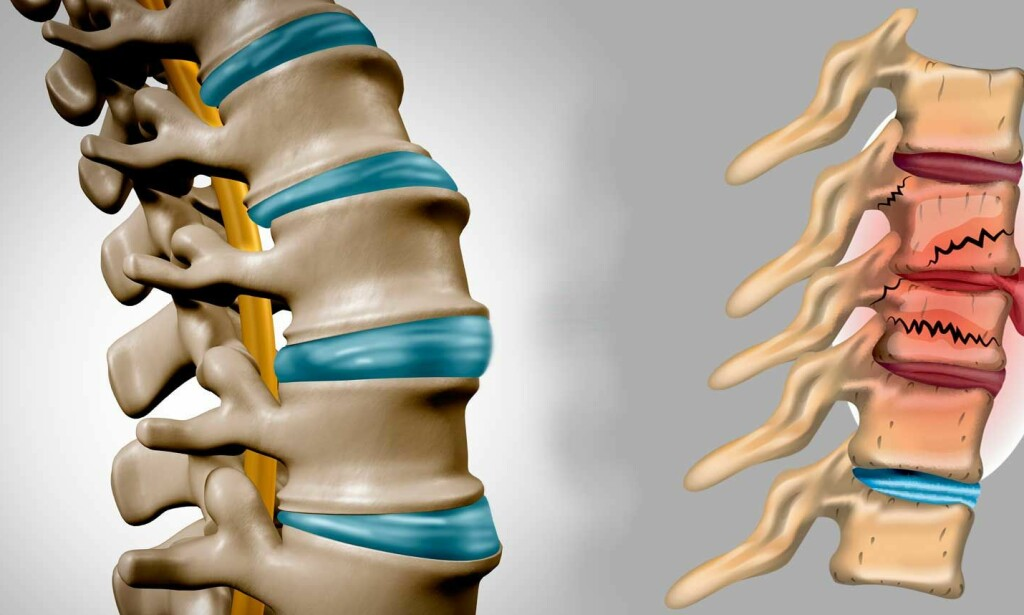 KOMPRESJONSBRUDD: Til venstre en del av en frisk ryggsøyle, til høyre flere kompresjonsbrudd i ryggsøylen - stabilt brudd. Foto: NTB Scanpix/Shutterstock