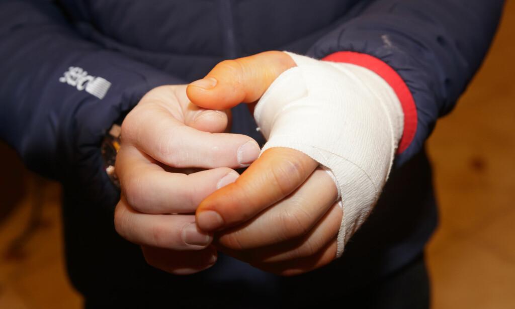 23 januar: Kjetil Jansrud viser frem hånden han brakk under utfortreningen i Kitzbühel. Foto: Cornelius Poppe / NTB Scanpix