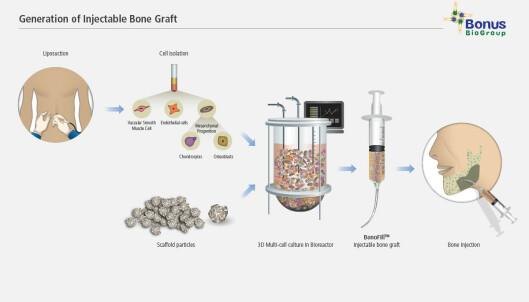 PROSESSEN: Her kan du se hele prosessen fra fettsugingen - til de sprøyter beinvevet inn i kroppen. Foto: Bonus Biogroup.