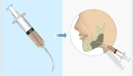 BEINVEV MED EGET DNA: Injiserbar beintransplantat mener selskapet kan fungere fint, blant annet i kjeven. Foto: Bonus Biogroup.