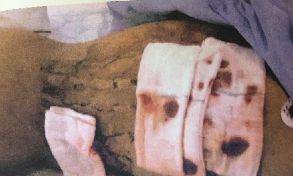 SKADET: Her er 25-åringens rygg etter at han ble flådd på en fest i fjor. Foto: Politiet