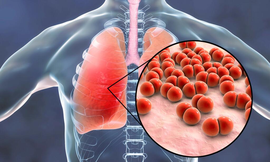 INFEKSJON I LUNGEVEVET: Lungebetennelse kan være alvorlig og sykehusinnleggelse kan bli nødvendig. Ofte starter infeksjonen som en relativt uskyldig influensa. Foto: NTB / Shutterstock.