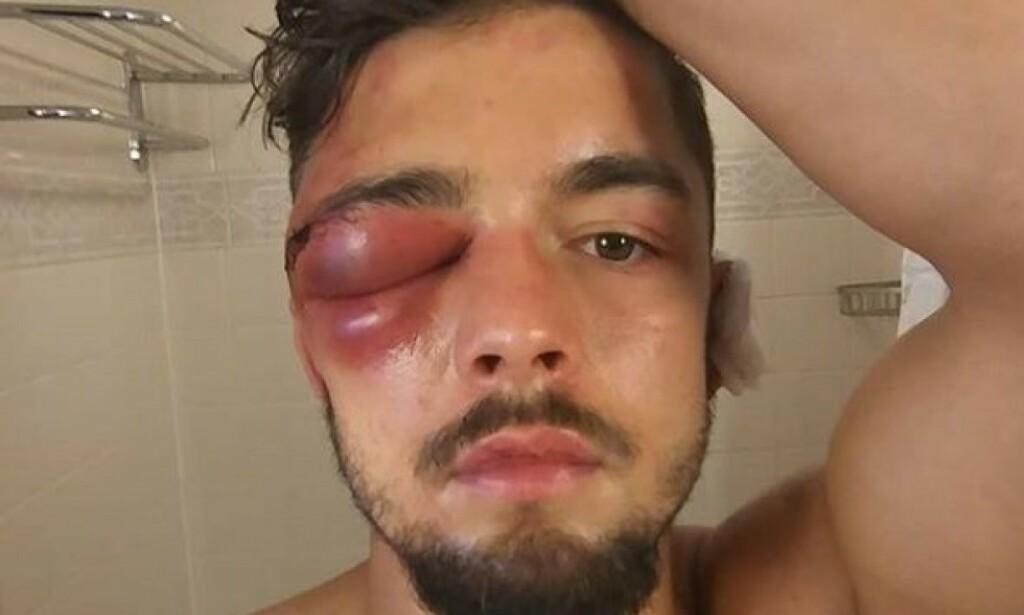 TILBAKE: Den svenske bokseren Anthony Yigit fikk massiv oppmerksomhet etter denne smellen i oktober. Nå er han tilbake i ringen - og med et nytt lite kutt. Foto: Anthony Yigit / Instagram