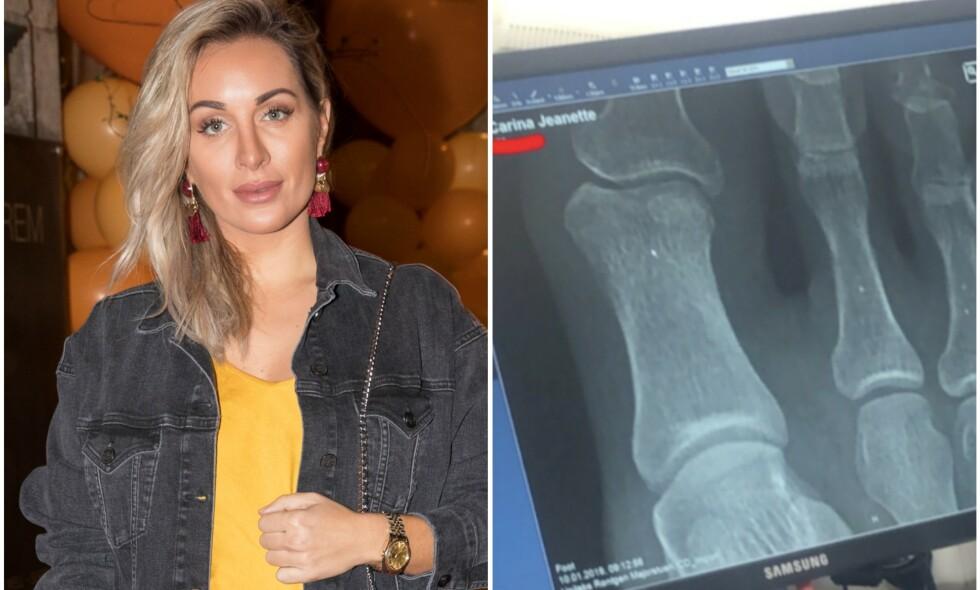 TOK RØNTGEN: Torsdag delte Carina Dahl bilde av at hun har fått sjekket foten sin etter en overbelastningsskade. Hun er likevel klar for å stå på scenen på lørdag. Foto: Espen Solli / Privat