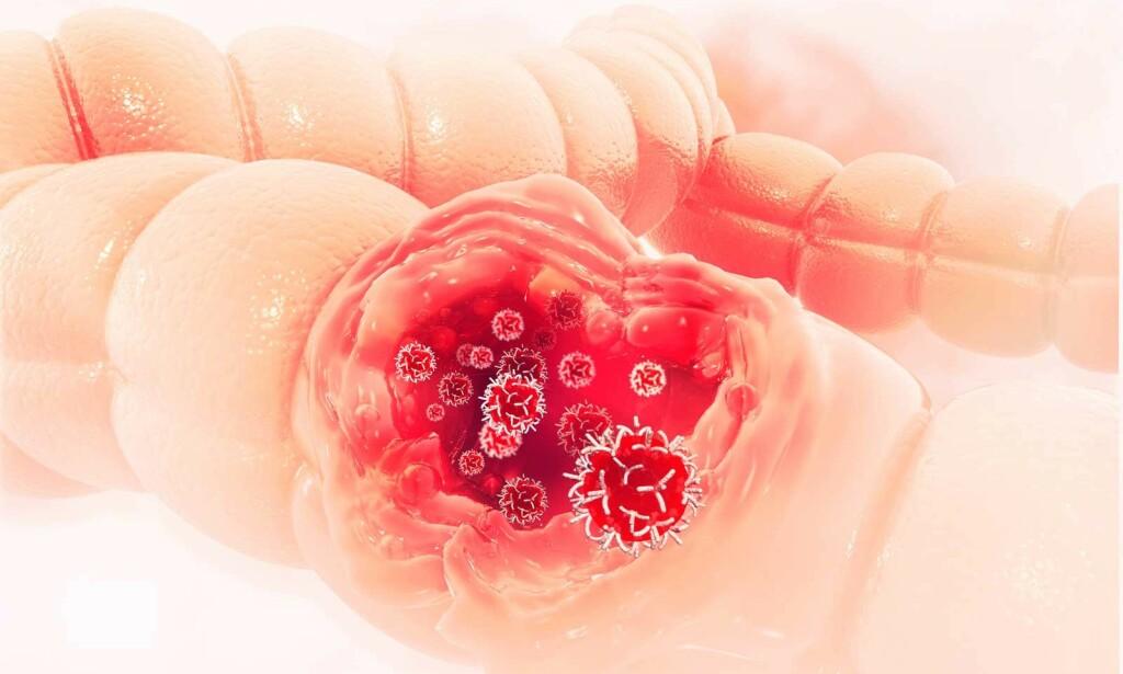 TEGN PÅ KREFT I TARMEN: Symptomene kan være diffuse, og symptomene er forskjellige ut fra hvor i tarmen kreften er plassert. Ilustrasjon: NTB 'Scanpix/Shutterstock