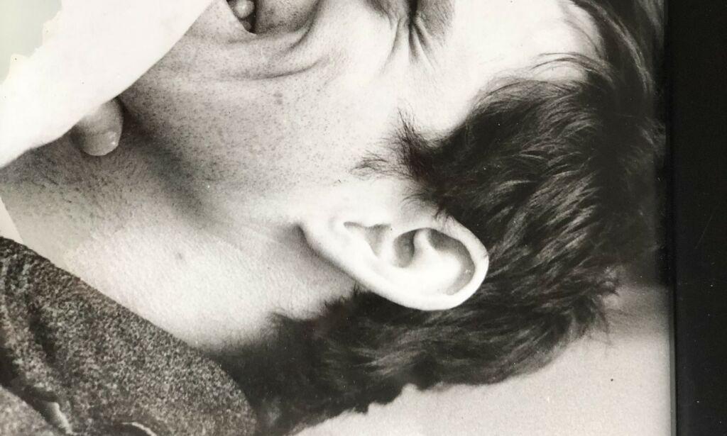 image: Alf Johan (51) skåldet i hjel