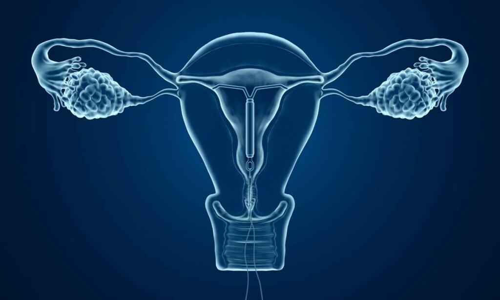 Hormonspiral - Lommelegen