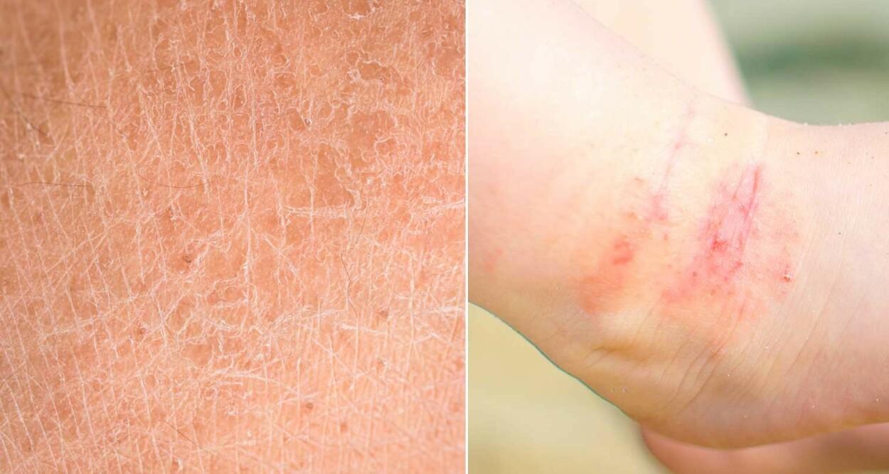 STRAM, TØRR HUD MED SPREKKER: Til venstre tørr hud som sprekker opp. Til høyre tørr hud med eksem. Foto fra: NTB Scanpix/Shutterstock