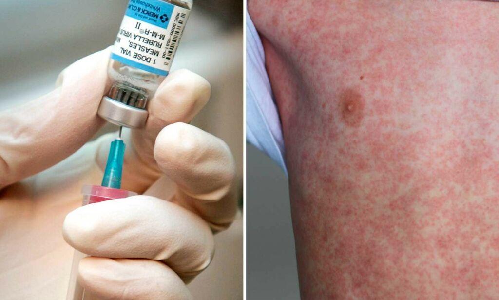 image: Mange voksne er ikke vaksinert mot meslinger. Sjekk hvem