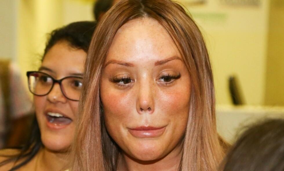 SJOKKERTE: Nye bilder av den britiske realitystjernen Charlotte Crosby sjokkerer fansen. Foto: NTB Scanpix