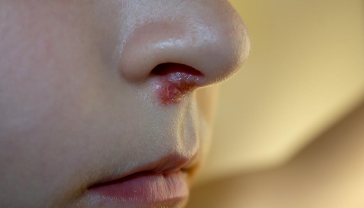 Sår i nesen kan ha mange årsaker. På bildet sees utslett som følge av en infeksjon med herpes simplex-virus. Foto: Shutterstock / NTB Scanpix
