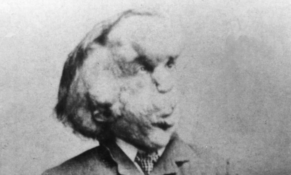 ELEFANTMANNEN: Joseph Merrick døde før han rundet 30, og ble brukt som sirkusattraksjon i Storbritannia på slutten av 1800-tallet. Foto: Universal History Archive / NTB Scanpix