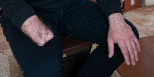 image: Med avrevet hånd overlevde Aleksander (31) med et nødskrik