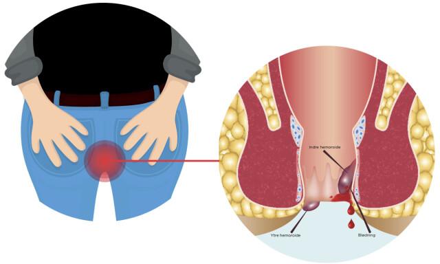 Hvordan bli kvitt hemoroider