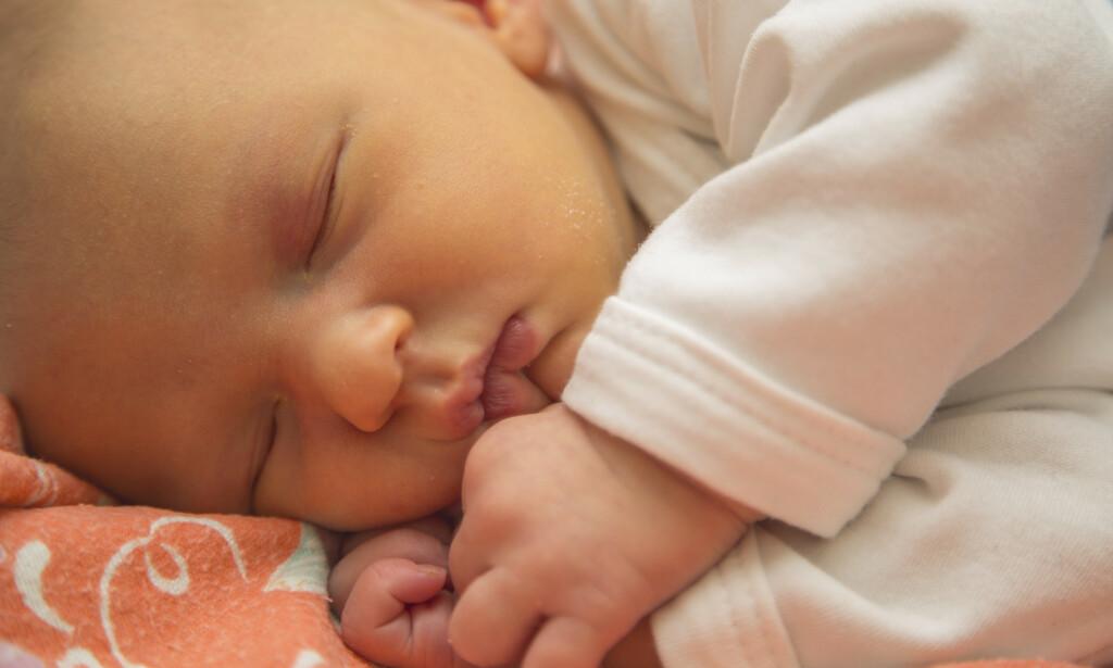 Gulsott hos nye verdensborgere er svært vanlig - det nyfødte barnet har da en gulaktig farge i huden, og kan nærmest se ut som det har ligget og solt seg. Foto: NTB Scanpix / Shutterstock / 1712773