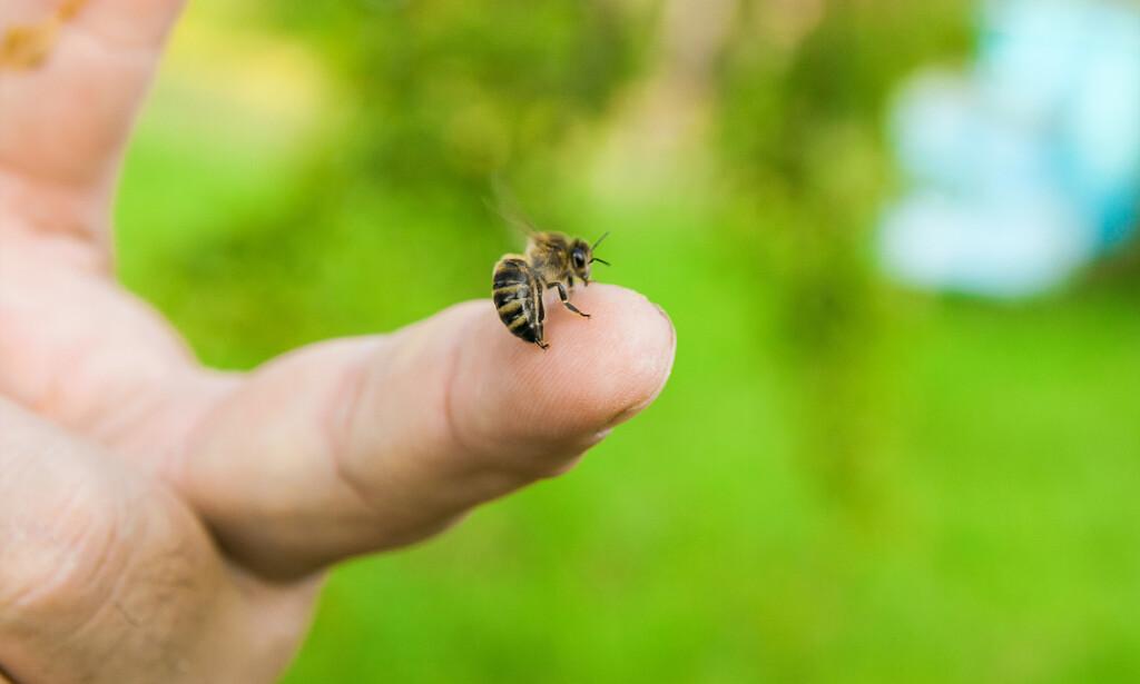 STIKK I FINGEREN: Stikk av veps, bie eller humle innebærer en liten injeksjon med insektsgift. Denne giften kan hos noen gi alvorlig allergisk reaksjon. Foto: NTB / Shutterstock.