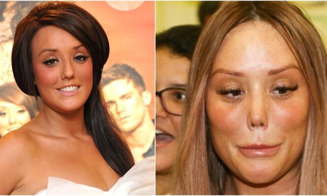 STOR FORSKJELL: Bildet til venstre er fra 2011 og til høyre fra 2019. Realitystjernens nåværende utseendet har vakt stor oppsikt den siste tiden. Foto: NTB scanpix