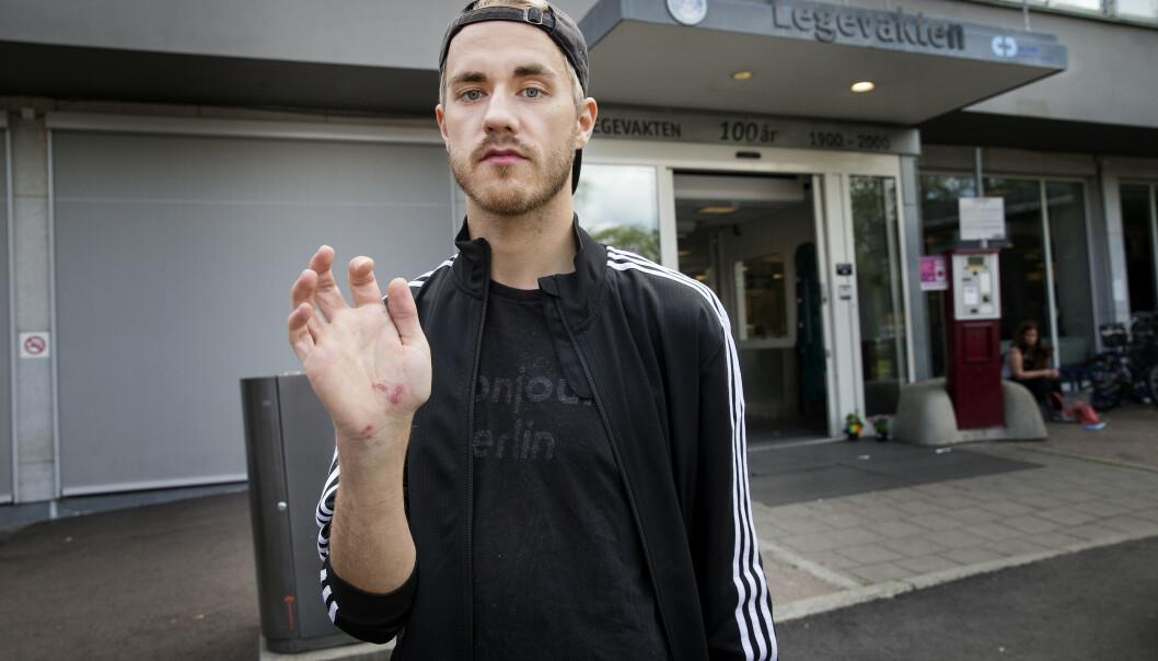 <strong>- BRUDD:</strong> Alexander Schei forteller at han har fått brudd i armen. Foto: Henning Lillegård / Dagbladet