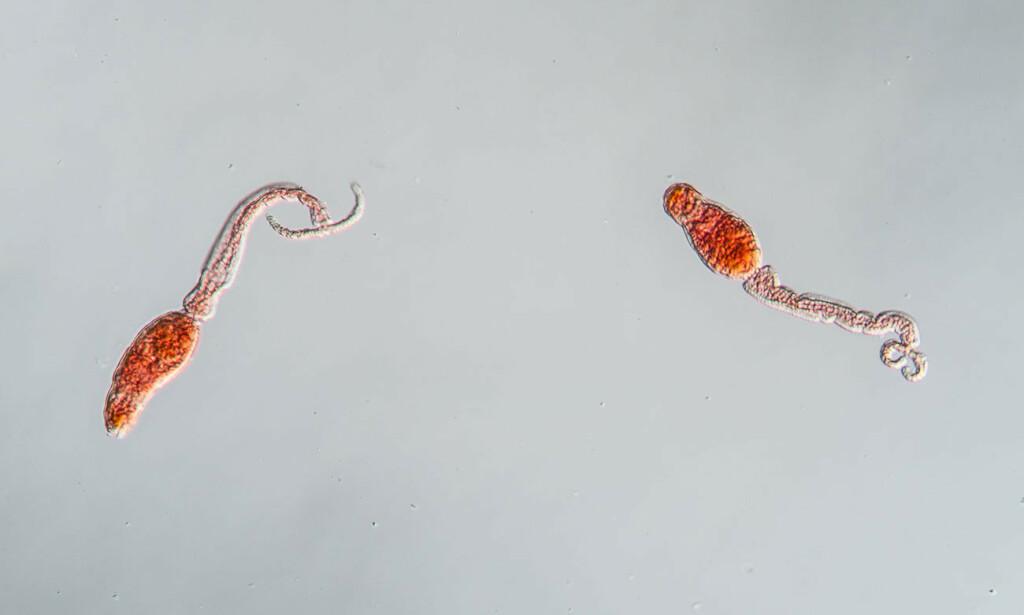 Kroniske plager i form av tilstanden schistosomiasis er forårsaket av små ferskvannslevende ikter, kun opptil 1-2 cm lange, her sett under mikroskopet. Foto: NTB Scanpix / Shutterstock