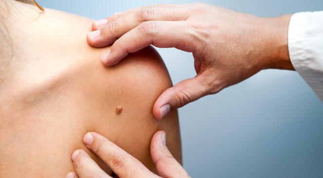 OPERERES: Føflekkreft behandles som oftest med operasjon. Foto: Damiangretka / Shutterstock / NTB scanpix.