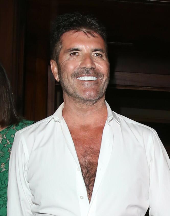 FORANDRET: Mange har lagt merke til at Cowells ansikt har forandret seg. Foto: NTB Scanpix