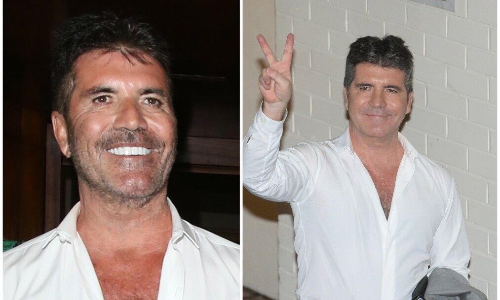 FORANDRET: Mange mener nå at Simon Cowells ansikt har forandret seg drastisk etter at han den siste tiden har gått ned i vekt. Bildet til høyre er fra 2015. Foto: NTB Scanpix