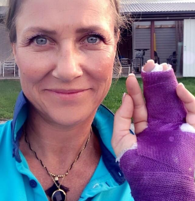 AU DA: Prinsesse Märtha Louise falt av hesten og brakk fingeren. Foto: Privat / Instagram