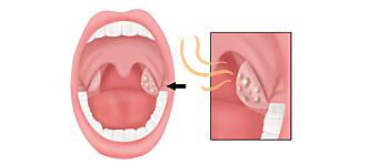 Mandelsteinene er plassert bak i munnhulen. Blir plagene for ille, kan det lønne seg å fjerne mandlene. Foto: Shutterstock