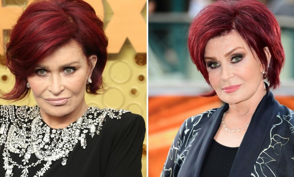 <strong>«NYTT» ANSIKT:</strong> I juni avslørte tv-personligheten Sharon Osbourne at hun skulle legge seg under kniven nok en gang for å få det hun beskrev som «et nytt ansikt». Nå er operasjonen gjennomført, men det gikk imidlertid ikke for seg uten komplikasjoner. Bildet til venstre er tatt etter det kirurgiske inngrepet, mens det til høyre er fra i fjor. Foto: NTB Scanpix