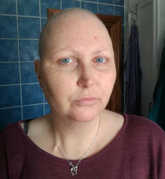 ETTER BEHANDLING: Dette er Vibeke da hun så smått begynte å få tilbake hår på hodet, vipper og bryn. FOTO: Privat