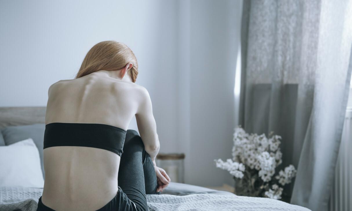 ANOREKSI: Spiseforstyrrelsen rammer flest kvinner. Foto: Shutterstock / NTB Scanpix