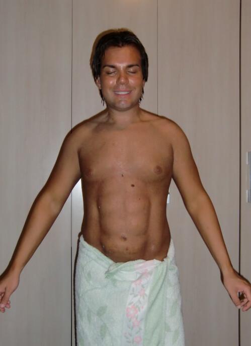 NY MAGE: Rodrigo Alves, også kjent under navnet «Human Ken Doll», avbildet etter et av sine første sixpack-inngrep. Foto: Rex / NTB Scanpix