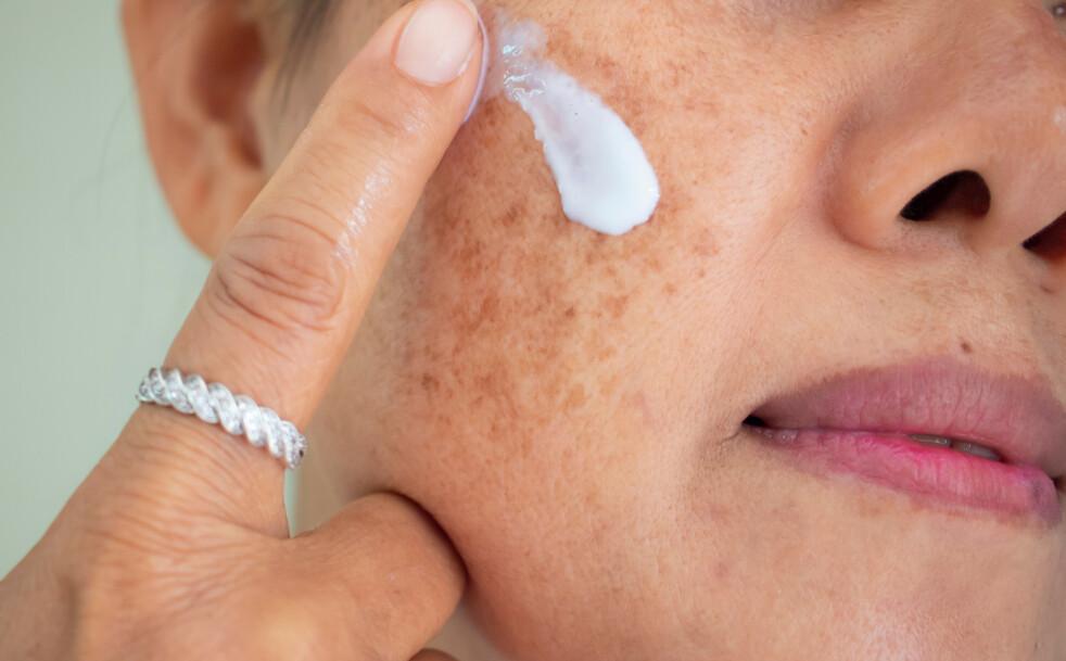 PIGMENTFLEKKER: Pigmentflekker, ofte kalt leverflekker til daglig, dreier seg om velavgrensede, flate og gjerne nokså lyst brune forandringer i huden, sier eksperten. FOTO: NTB Scanpix