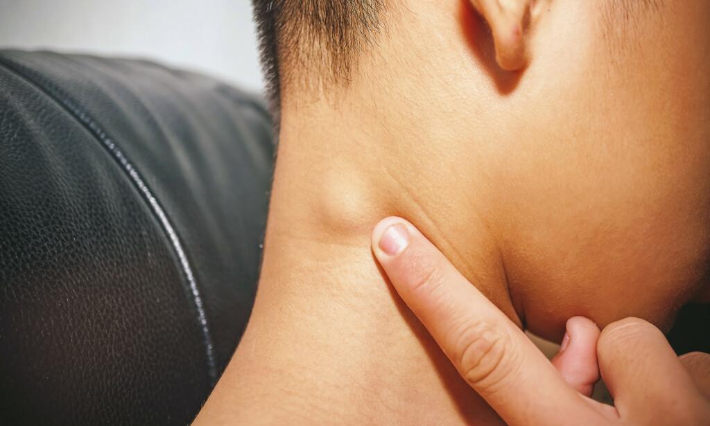 KUL: Hovne lymfeknuter er en vanlig årsak til kul på halsen. Foto: Shutterstock / NTB scanpix
