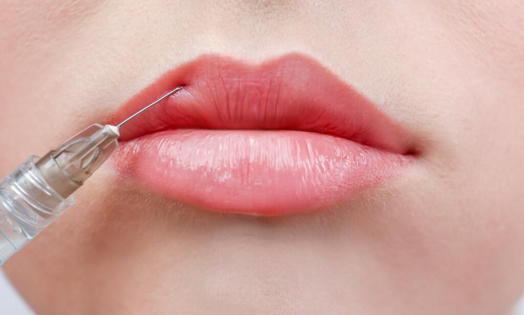 FILLERE: Fillere blir ofte brukt til å skape volum i leppene. Foto: Shutterstock / NTB Scanpix