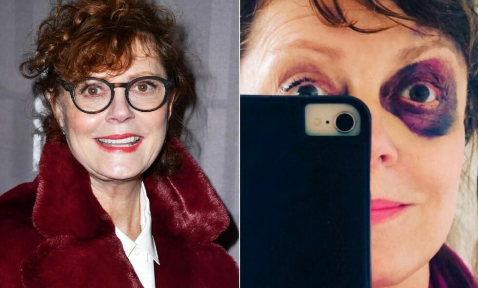 BLÅVEIS: Susan Sarandons fall førte til en solid blåveis. Foto: NTB Scanpix