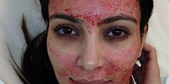 image: Saksøker lege etter «vampyr-behandling»