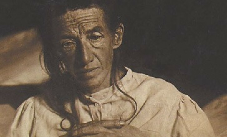 Auguste Deter, the first recorded case of Alzheimer's