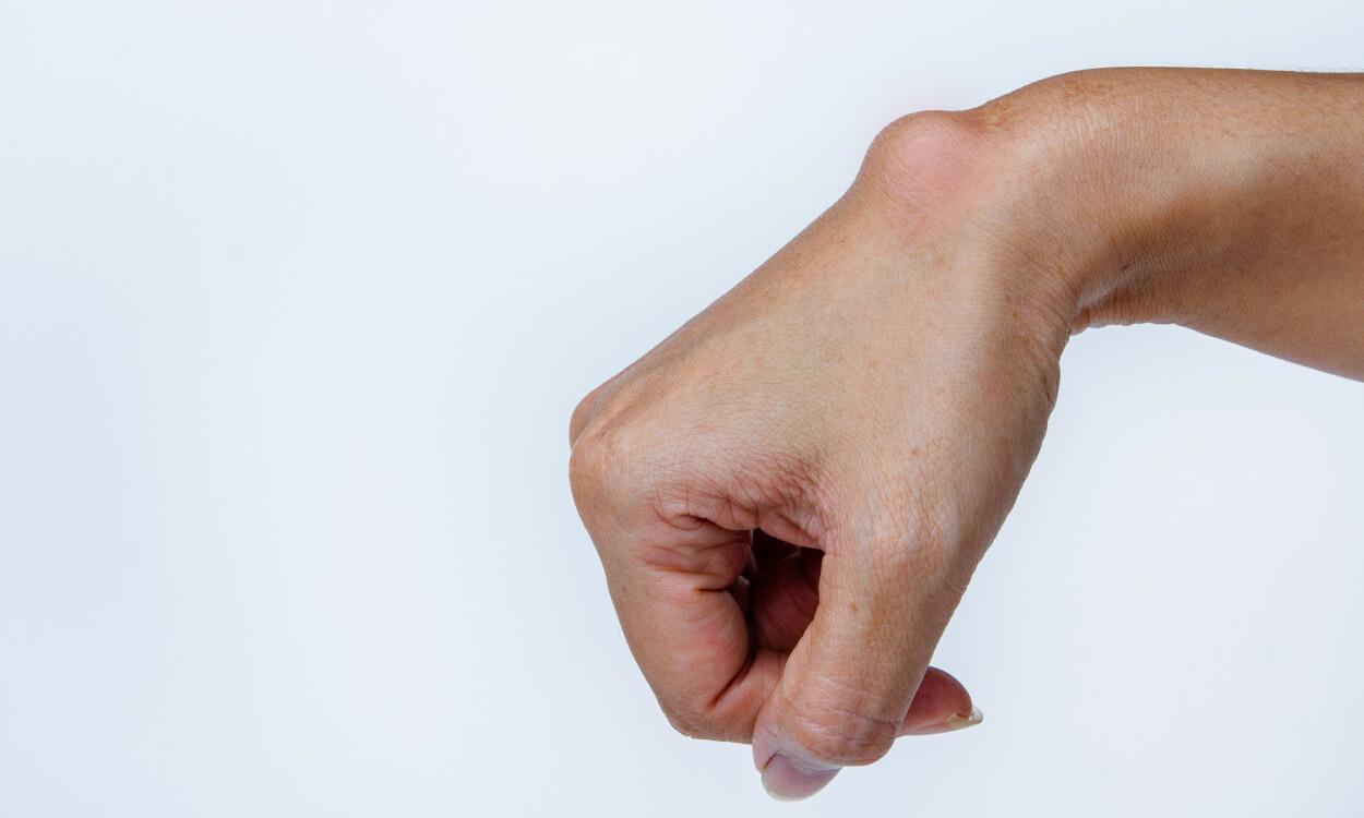 VÆSKEFYLT CYSTE: Et ganglion er en væskefylt cyste med et geléaktig innhold. Foto: NTB Scanpix / Shutterstock