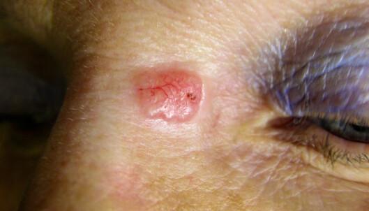 Dette er også basalcellekreft. De to tilfellene ser svært forskjellige ut, det de har til felles er at de er sår som ikke vil gro på solutsatt hud. Foto: Shutterstock/NTB Scanpix