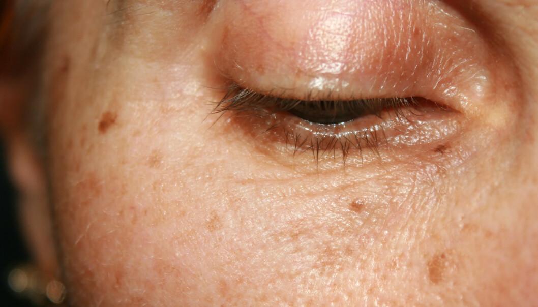 <strong>ALDERSFLEKKER:</strong> Alle får flekker i huden med alderen, enten på grunn av nettopp alderen i seg selv eller fordi vi har vært mye i sola. Noen av dem kan få være, andre bør følges opp. Foto: Shutterstock/NTB Scanpix