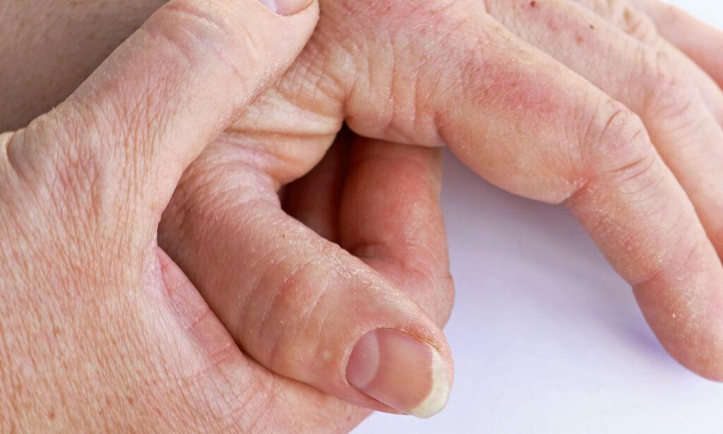 image: Den beste behandlingen mot håndartrose