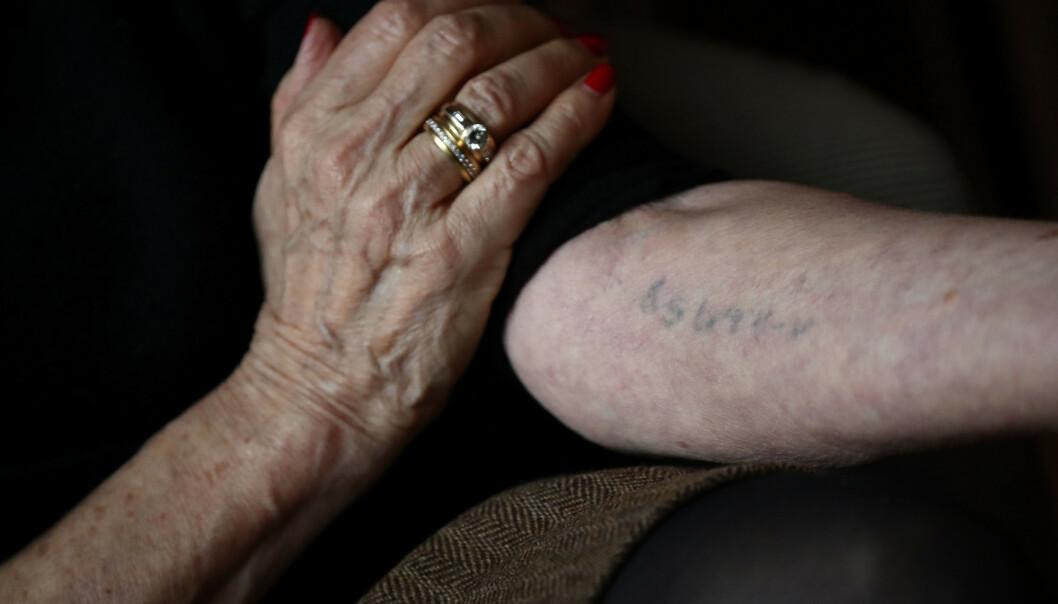 MERKET FOR LIVET: Fangenummeret Eva Umlauf som toåring fikk tatovert på armen ved ankomst Auschwitz i 1944, er fortsatt synlig. Foto: AP / NTB scanpix