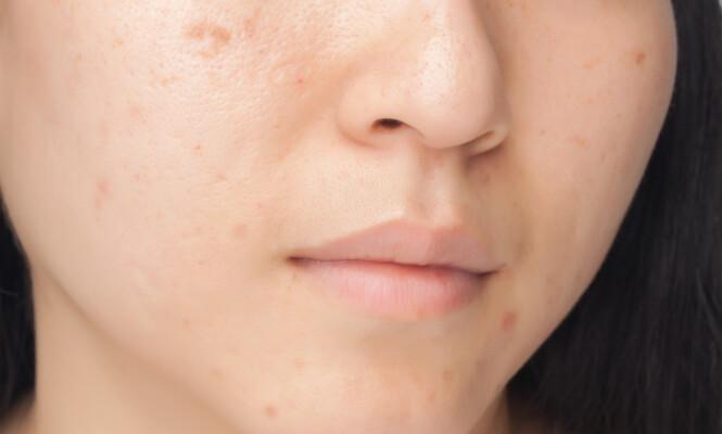 PIGMENTFLEKKER: Pigmentflekker kommer som følge av soleksponering. FOTO: NTB Scanpix