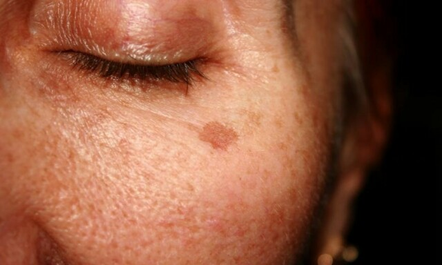 brun i ansiktet